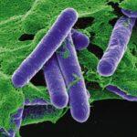 Botulismo Clostridium Botulinum Bacteria C: Corbis/Stock Photos