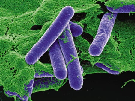 Botulismo Clostridium Botulinum Bacteria C: Corbis/Stock Photos
